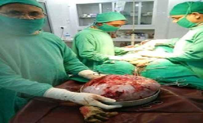 महिला के पेट से निकाला गया 12 किलो का ट्यूमर