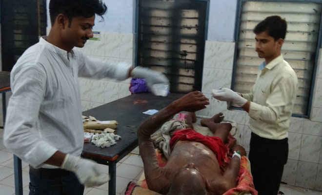 छपरा में बकाया रुपये मांगने गये वृद्ध पर तेजाब से हमला, सदर अस्पताल में भर्ती