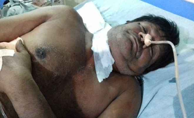 मुजफ्फरपुर में राजद के 2 नेताओं को अपराधियों ने मारी गोली, हालत गंभीर