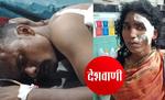मोतिहारी के बेलबनवा में पति-पत्नी को चाकू मार किया घायल, दो भाइयों पर ही चाकू मारने का आरोप